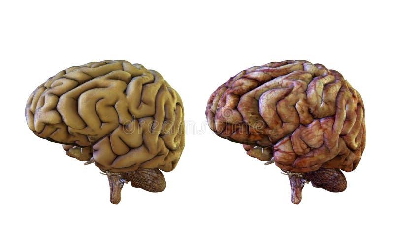 健康和被激起的人脑比较,损坏 向量例证