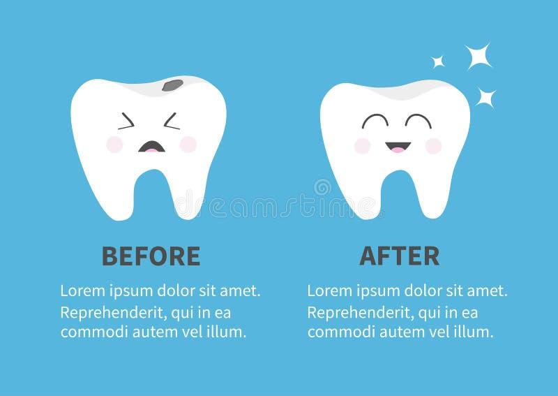 健康微笑的牙象 光亮的星形 有龋的哭泣的坏不适的牙 以前在与文本的Infographic模板以后 逗人喜爱的炭灰 库存例证