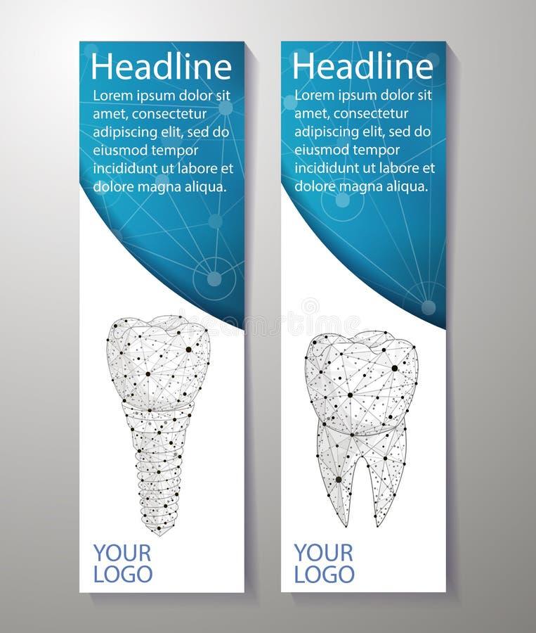 健康牙和牙插入物 横幅设计 能为行销使用 向量例证