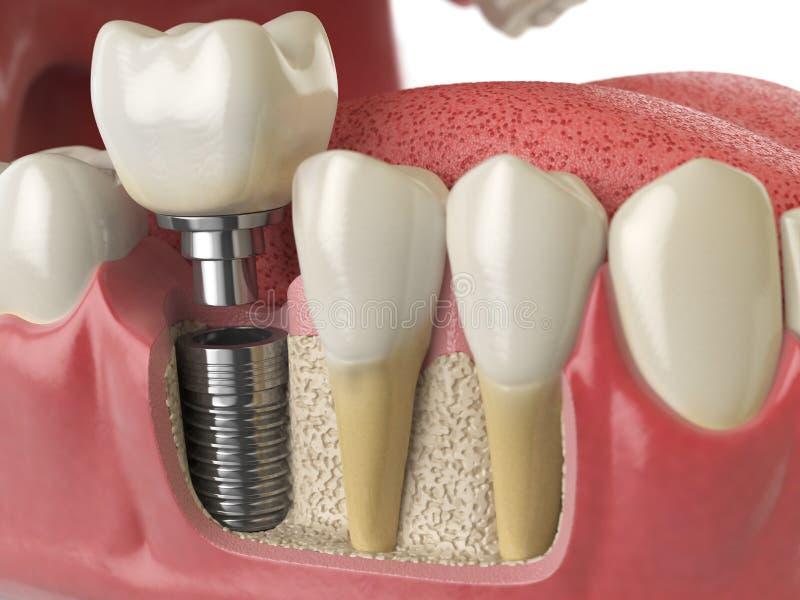 健康牙和牙牙插入物解剖学在人的dentu 皇族释放例证