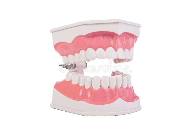 健康白色人的牙解剖模型 牙科 免版税库存照片