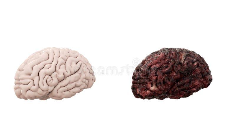 健康脑子和疾病脑子在白色孤立 验尸医疗概念 巨蟹星座和抽烟的问题 库存图片