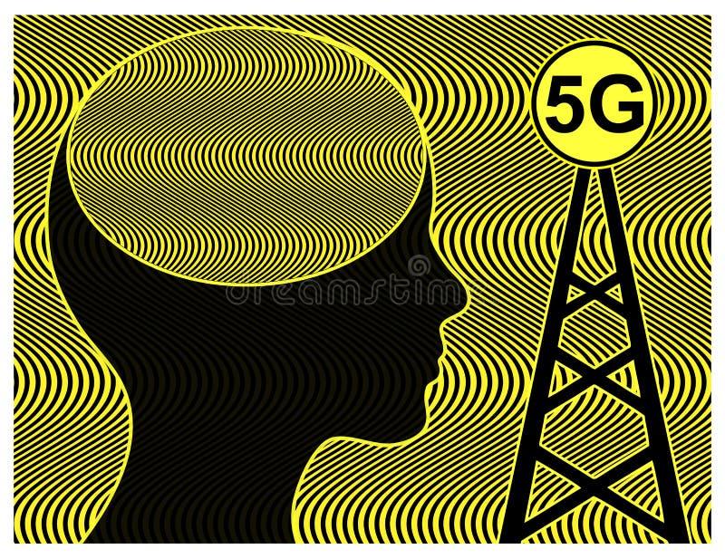健康风险由于5G辐射 皇族释放例证
