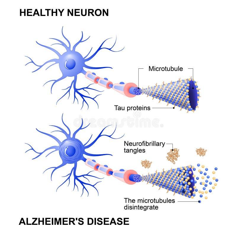 健康细胞和神经元以阿耳茨海默氏` s疾病 Tau hypothesi 库存例证