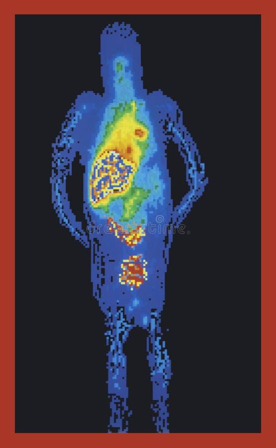 充分身体医疗扫描 库存例证