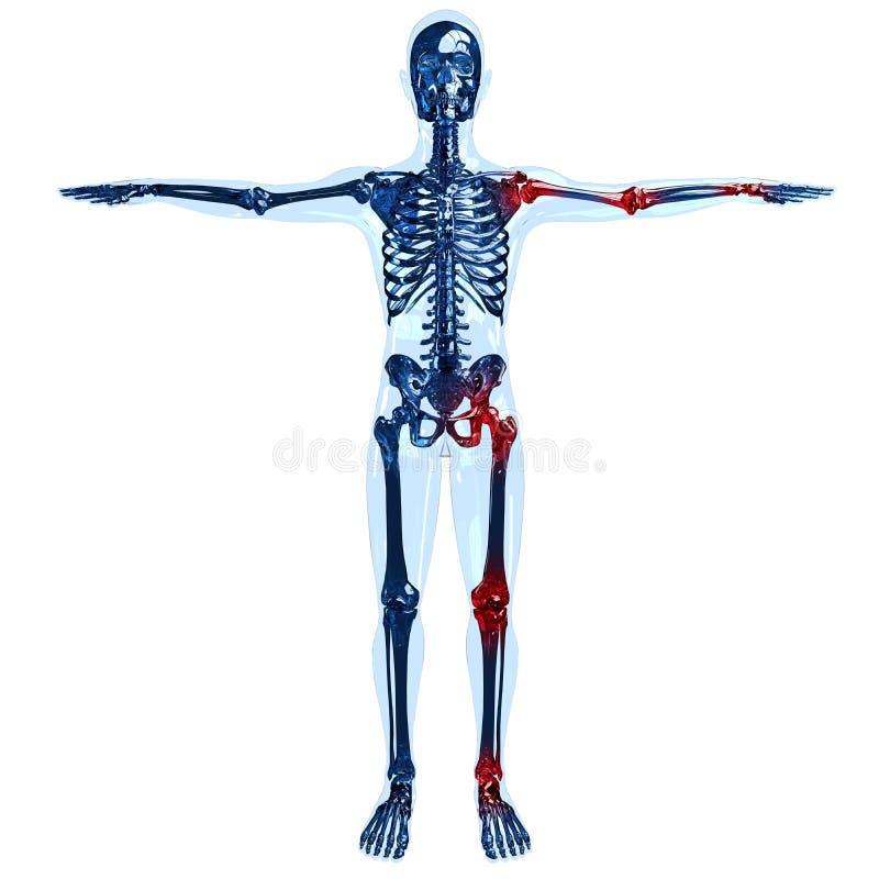 充满关节痛的充分的人的骨骼3D概念在左边 图库摄影