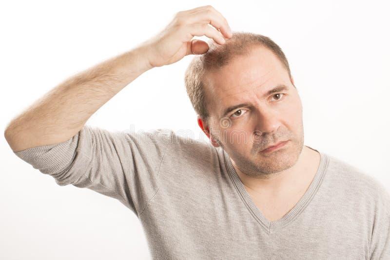 光秃脱发症人掉头发haircare 免版税库存图片