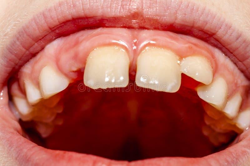 八年的孩子特写镜头与不疏松他的乳齿的问题的在坚持的治疗以后的10个月- 库存照片