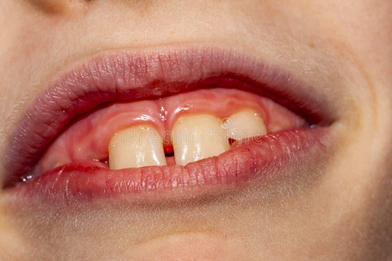 八年的孩子特写镜头与不疏松他的乳齿的问题的在坚持的治疗以后的10个月- 免版税图库摄影
