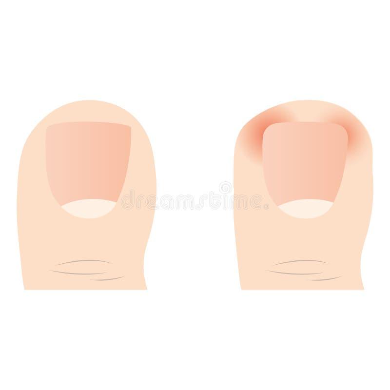 共同的脚问题传染媒介  向内生长钉子 图库摄影