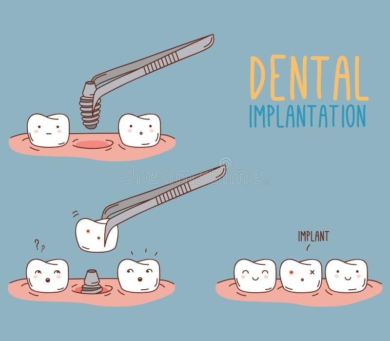 关于牙替换的漫画 向量 库存例证