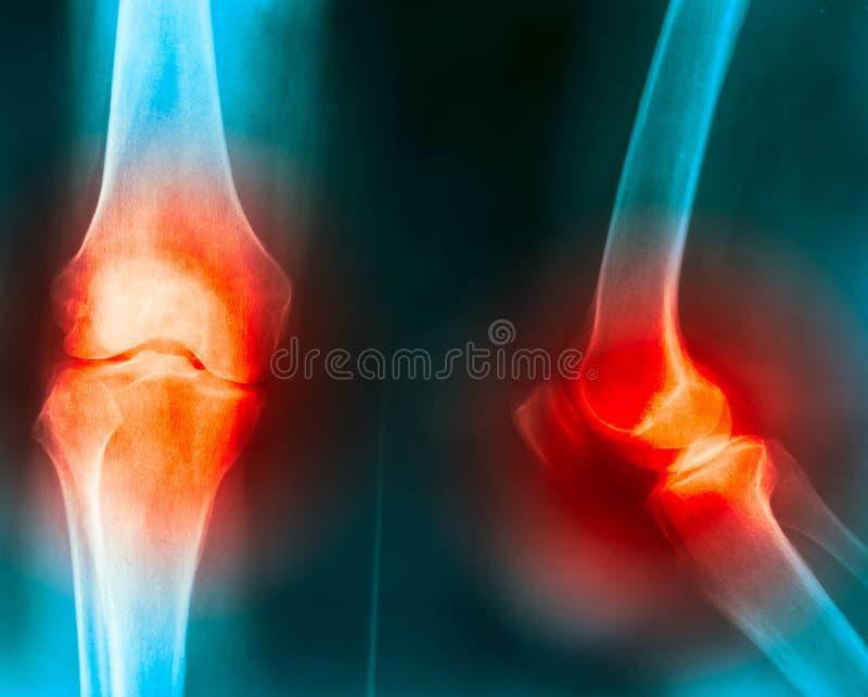 关心健康联接膝盖按摩痛苦 免版税库存照片