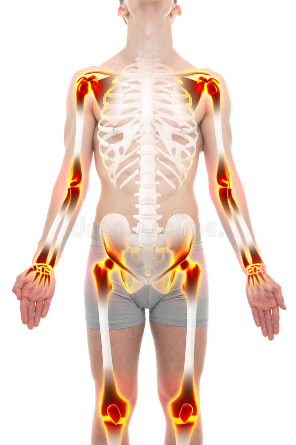 关节炎关节痛解剖学男性概念 库存照片