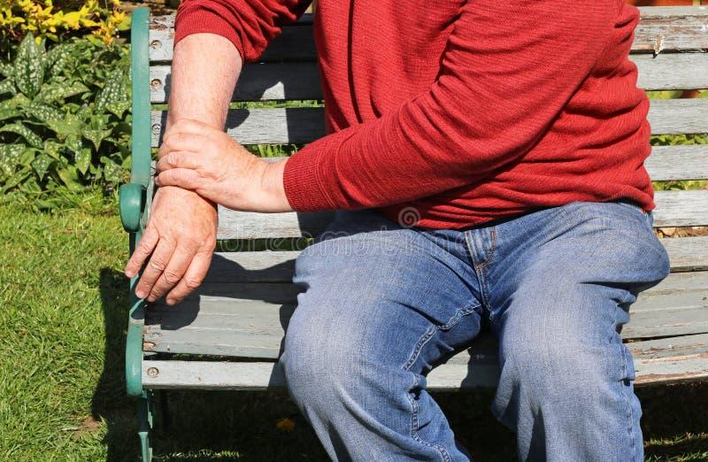 关节炎,痛苦的腕子 反复张力 库存照片