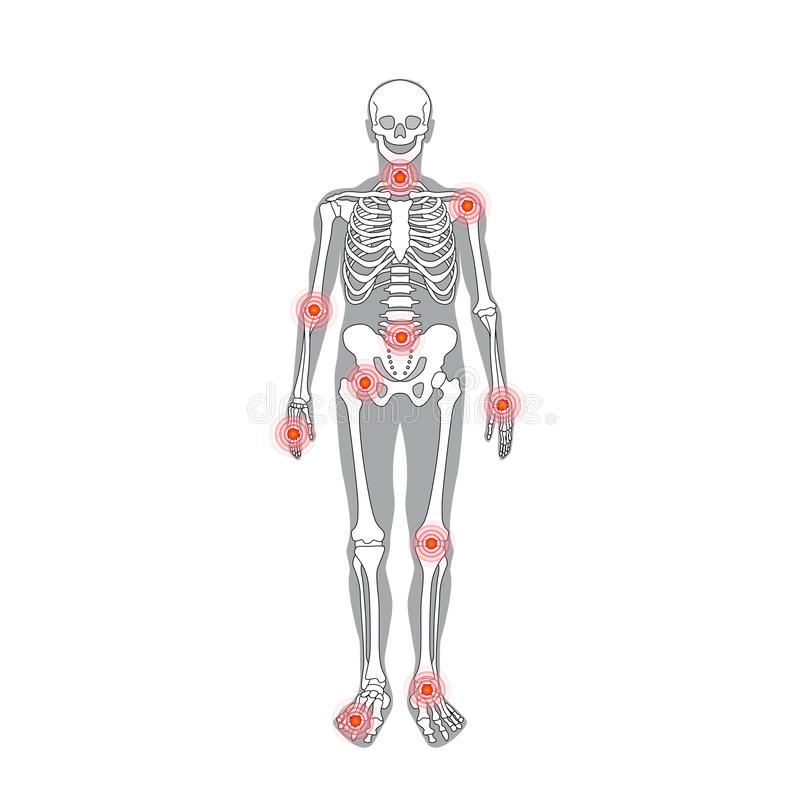关节痛传染媒介与痛苦圆环的身体局部 皇族释放例证
