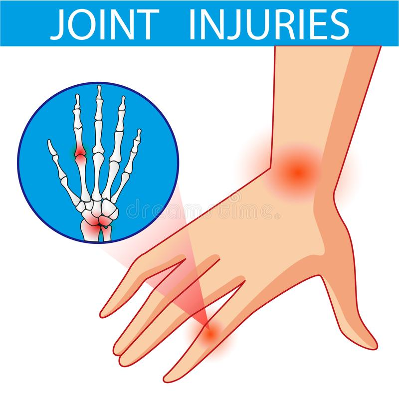 关节痛 动画片传染媒介 向量例证