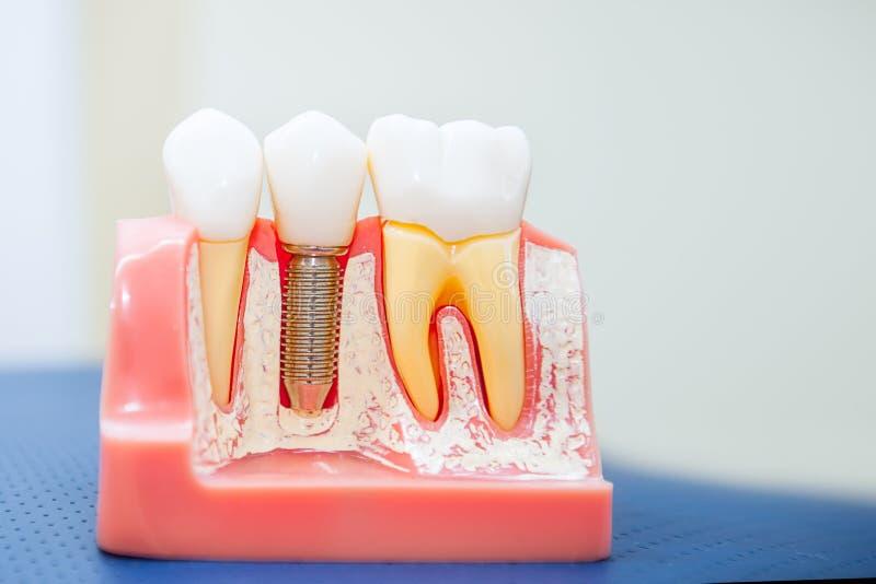 关闭人的牙植入管,冠模型 现代口腔医学概念 选择聚焦 文本的空间 免版税库存图片