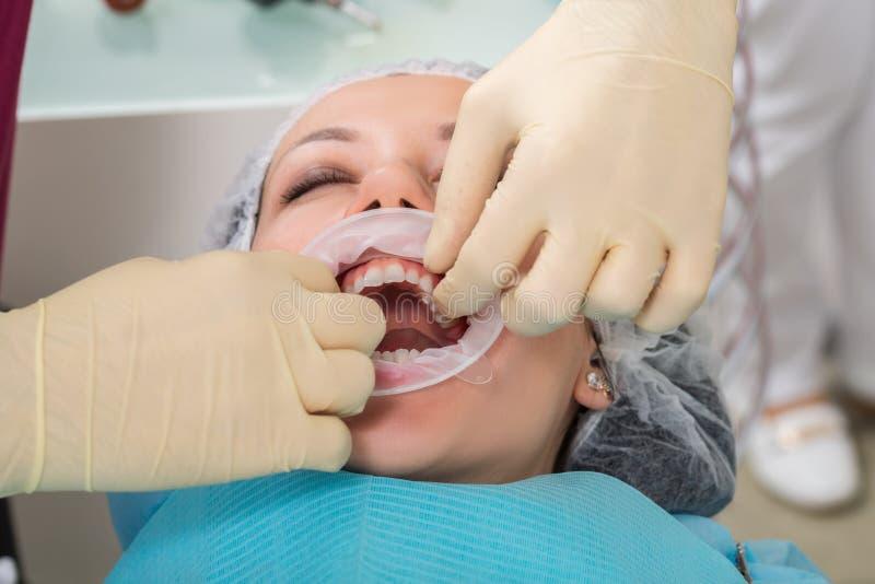 关闭准备和安装牙齿陶瓷冠的过程 男性专业牙医帮助对待妇女轻拍的牙 库存图片