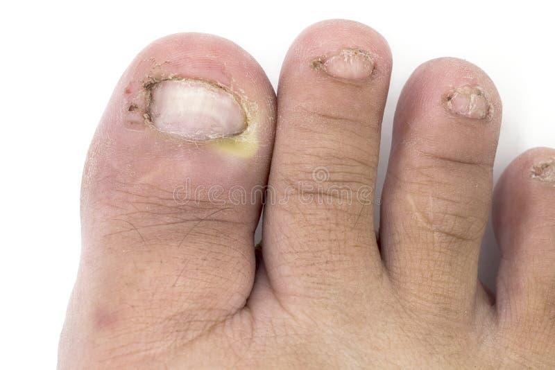 关闭在钉子脚,有onychomy的手指的真菌传染 免版税库存图片