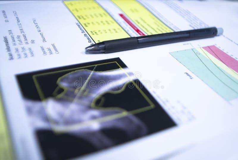 关闭在骨头测密度术臀部结果投入的笔 在明亮 背景 免版税库存图片