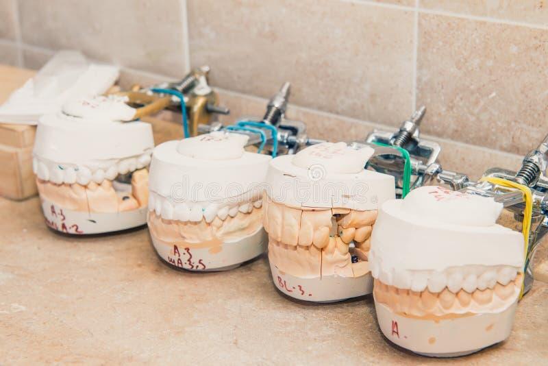 关闭少量牙齿石膏模型,牙模子 加工面上的石膏模型stomatologic人的下颌修复的实验室, 免版税库存图片