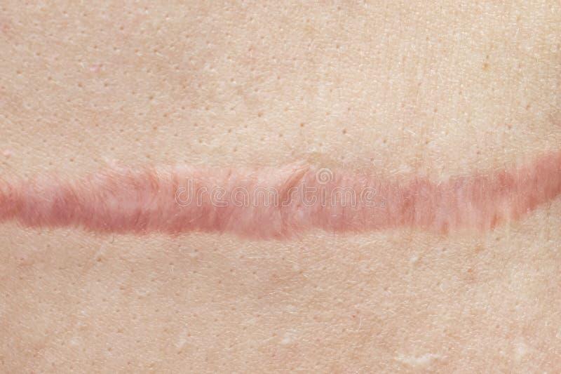 关闭手术造成的青紫的蟹状肿伤痕和缝合,皮肤缺点或者瑕疵 在皮肤的肥大性伤痕, 免版税图库摄影