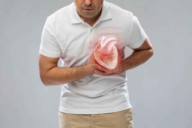 关闭有的人心脏攻击或心伤 免版税库存照片