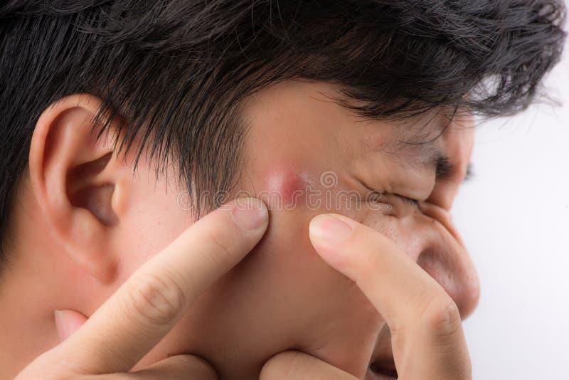 关闭粉刺有倾向的皮肤,紧压他的丘疹的一个人照片  免版税图库摄影