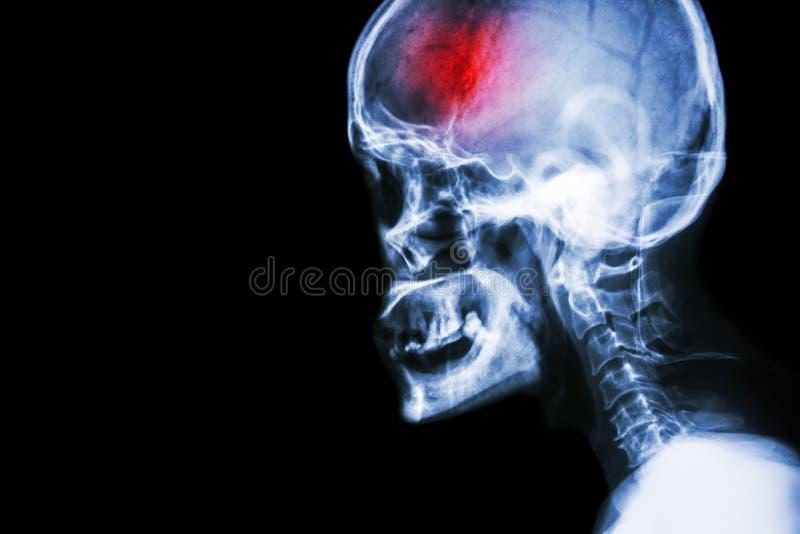 冲程 摄制X-射线头骨和子宫颈脊椎侧向视图和冲程 脑血管故障 空白的区域在左边 免版税图库摄影