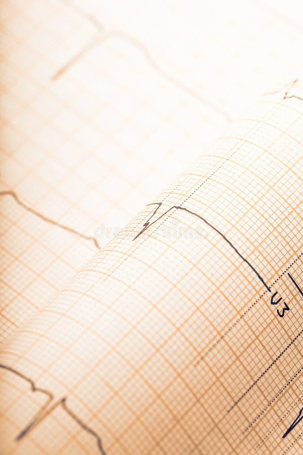 减速火箭的被称呼的ECG纸背景 免版税图库摄影