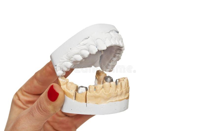 凹痕在牙医手上塑造 库存照片