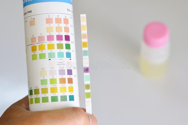 分析尿 免版税图库摄影