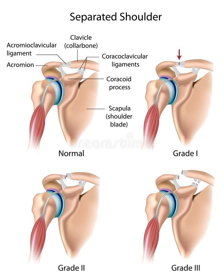 分隔的肩膀 向量例证