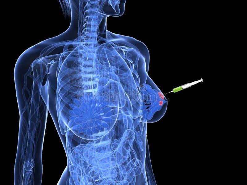 切片检查法乳腺癌射入 库存例证