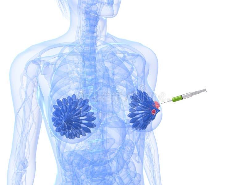 切片检查法乳腺癌射入 向量例证