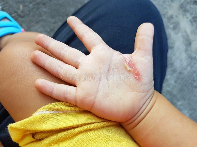 创伤在一个孩子的手上从铁烧伤的 免版税库存图片