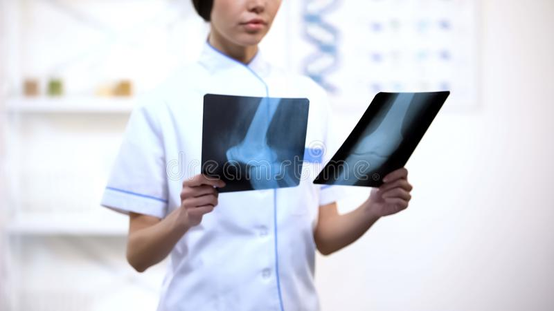 制服的医生检查骨头的X射线辐射创伤和修复期间,健康 免版税图库摄影