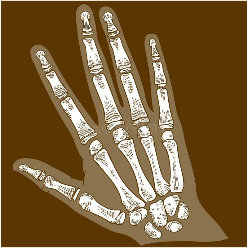 刻记手骨头X-射线的例证 库存照片