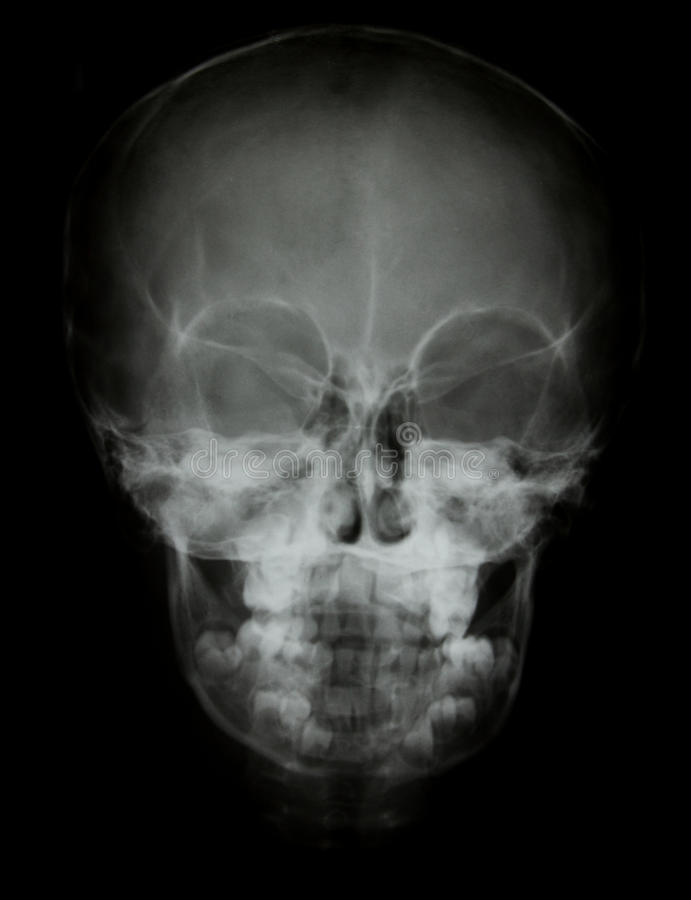 前表面头骨X-射线图象 库存照片