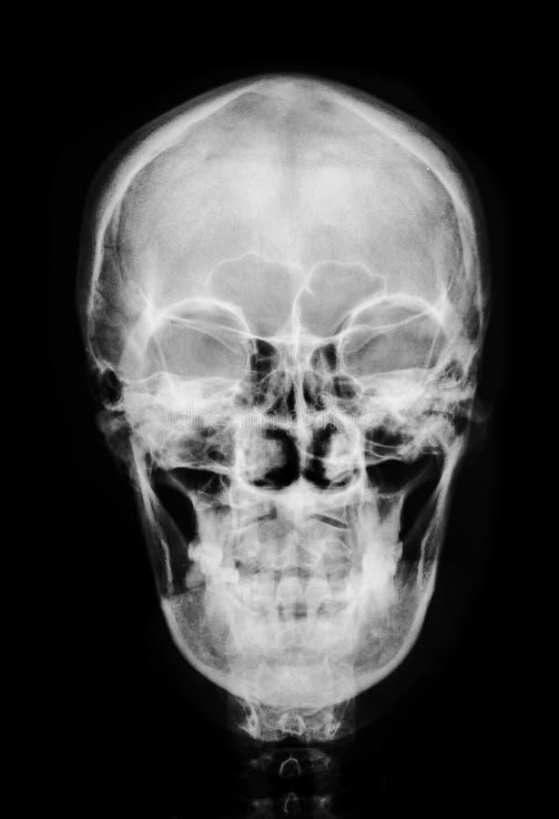 前面面孔头骨X-射线 库存图片