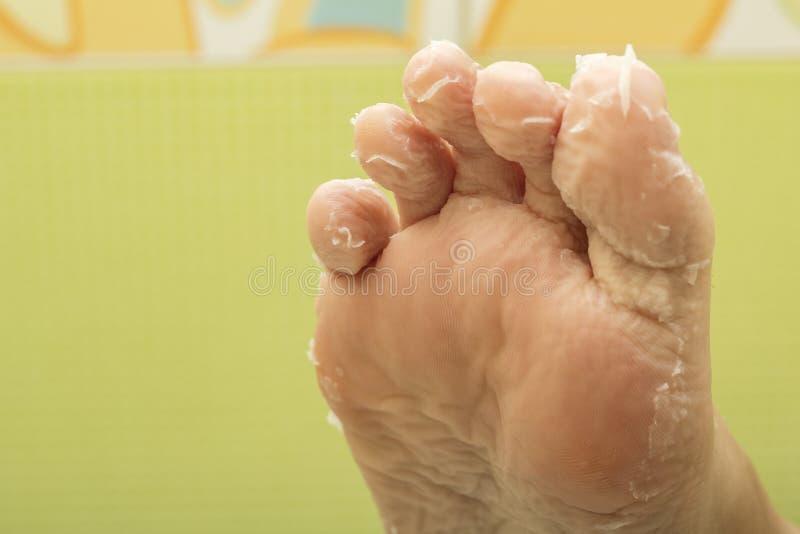 剥在妇女的脚趾的皮肤 脚的皮肤的亚洲面具,剥皮 皮肤更新的作用 免版税库存照片