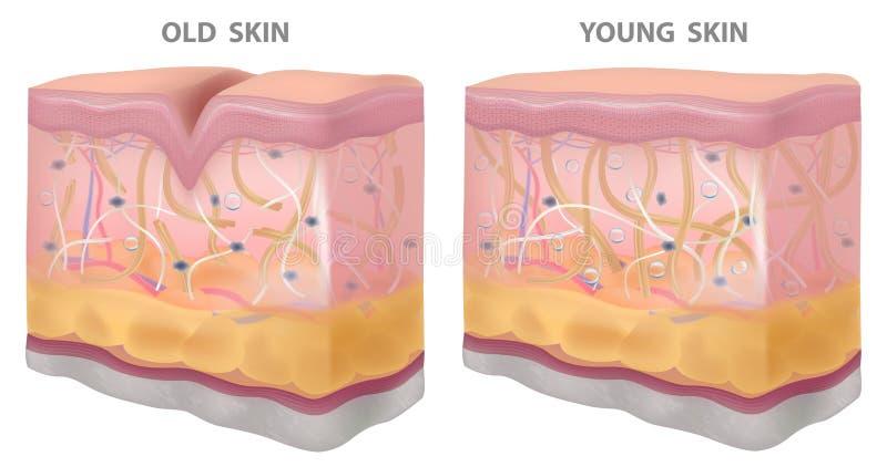 剥皮年轻老皱痕,现实图画,结构传染媒介例证 向量例证