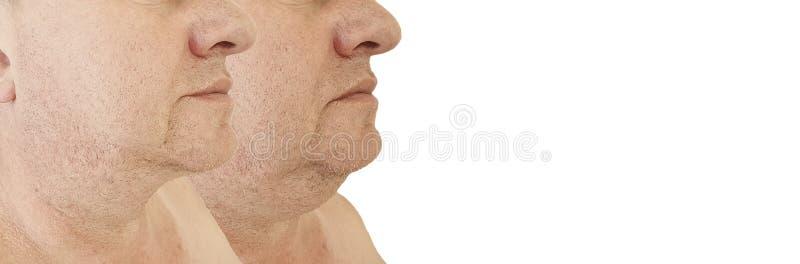 加强肥胖病拼贴画的男性双下巴举的下垂的治疗在塑料审美治疗前后 库存图片
