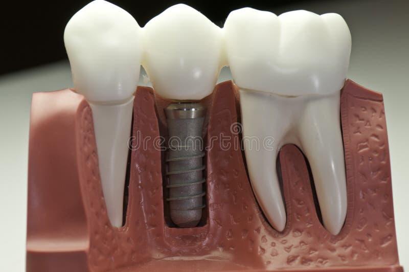 加盖的牙插入物设计 免版税库存照片