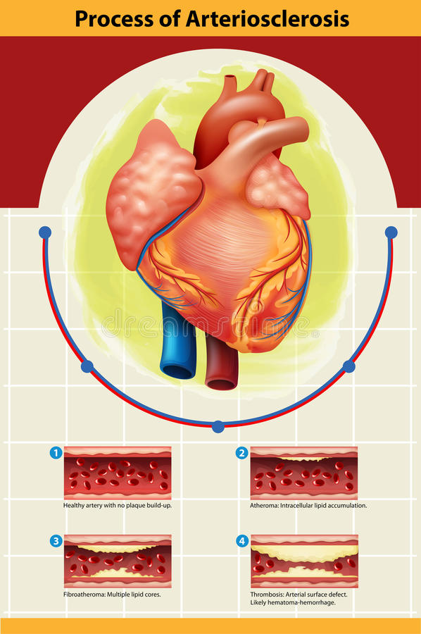 动脉硬化症过程海报  皇族释放例证