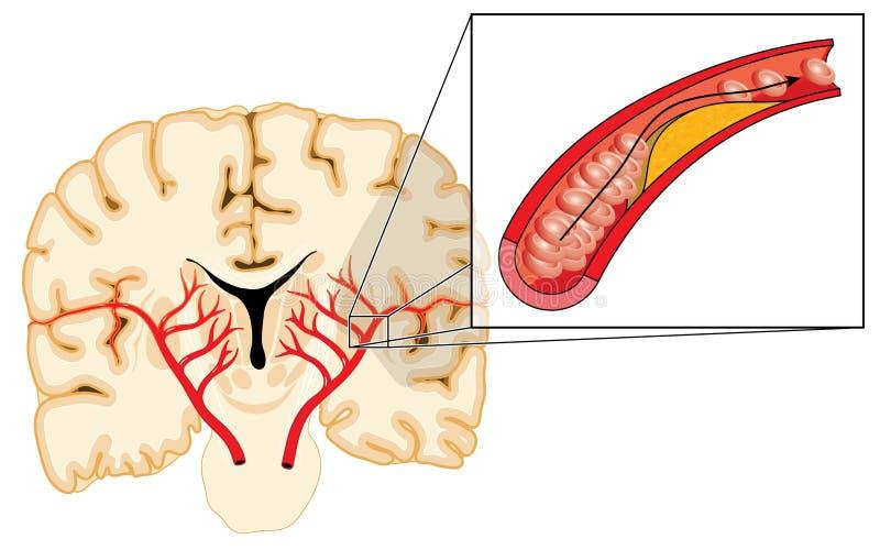 动脉粥样硬化和冲程 库存例证