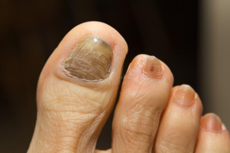 化疗真菌趾甲 免版税图库摄影