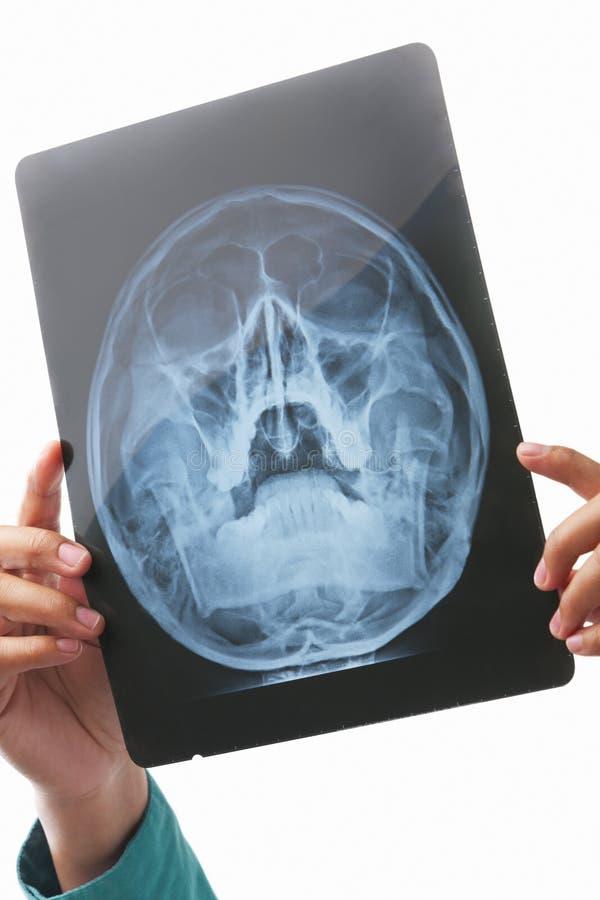 区现有量藏品图象头骨X-射线 免版税库存照片
