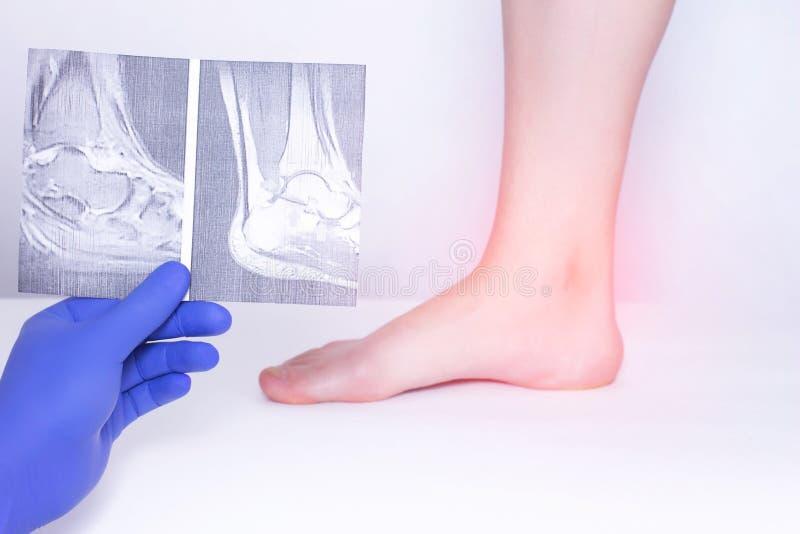 医生举办距小腿关节的一个身体检查使用X-射线查出关节,诊断疾病  免版税库存图片