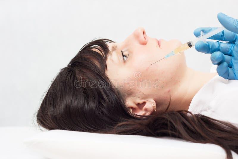 医生做射入血浆改进皮肤的质量在面孔和反对粉刺,皱痕 免版税图库摄影